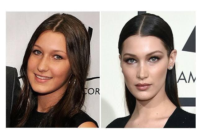 Bella Hadid antes y después